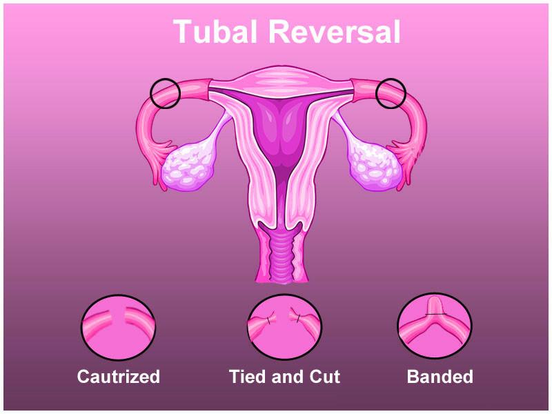 tubal reversal India