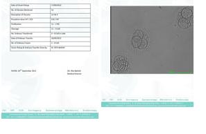 ivf embryo transfer