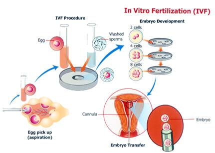 IVF Process in Delhi
