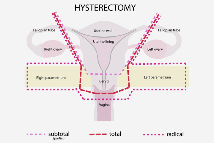 Hysterectomy Treatment In India