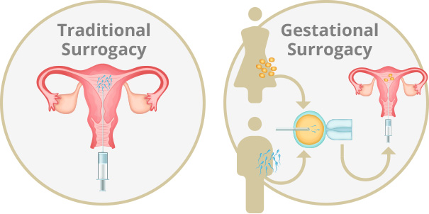 types of surrogacy