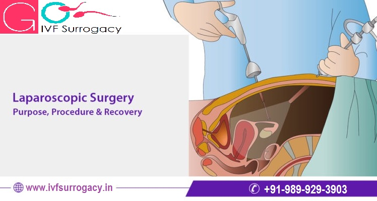 Laparoscopic-surgery-in-Mumbai.jpeg